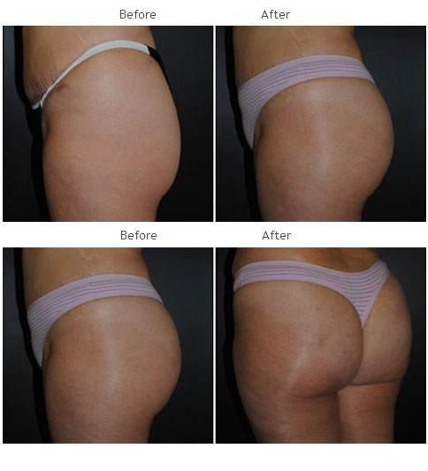 Brazilian Butt Lift NYC Case 1039