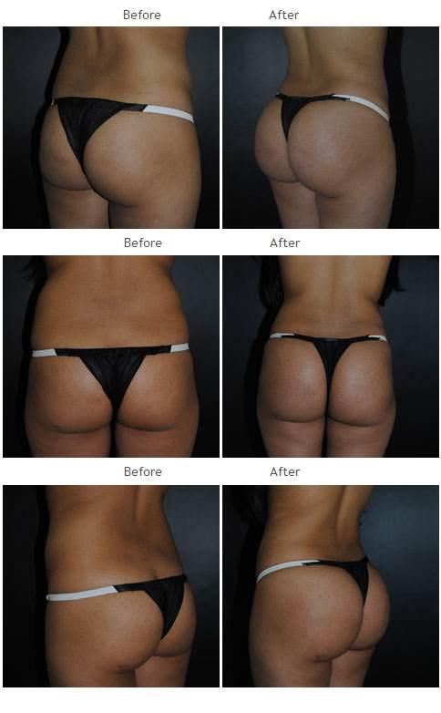 Brazilian Butt Lift NYC Case 1042