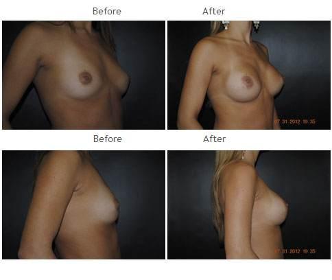 Breast Augmentation NYC Case 1043