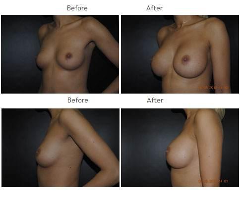 Breast Augmentation NYC Case 1046