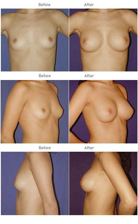 Breast Augmentation NYC Case 1047
