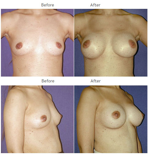 Breast Augmentation NYC Case 1048
