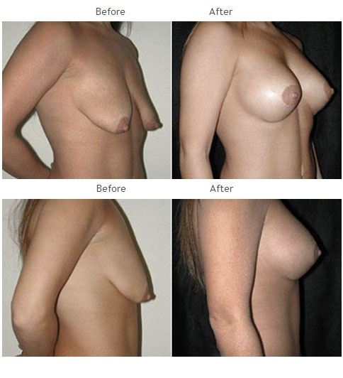 Breast Augmentation NYC Case 1054