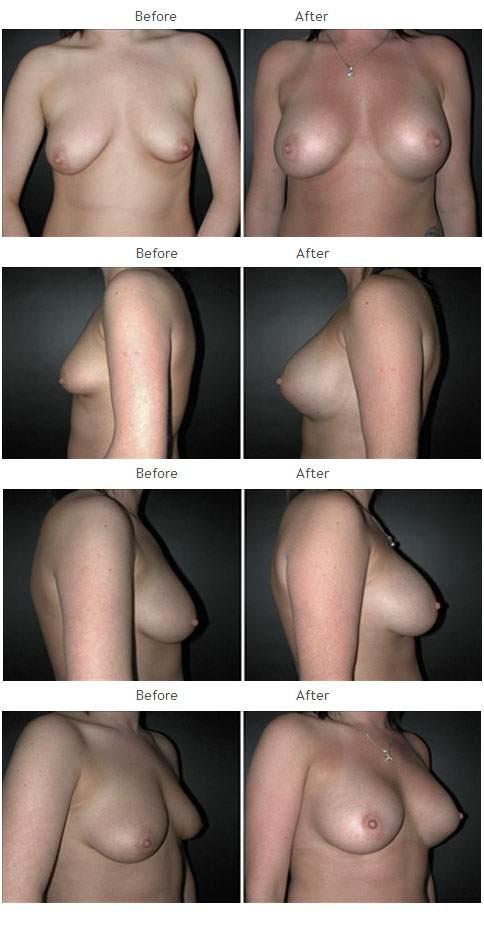 Breast Augmentation NYC Case 1055