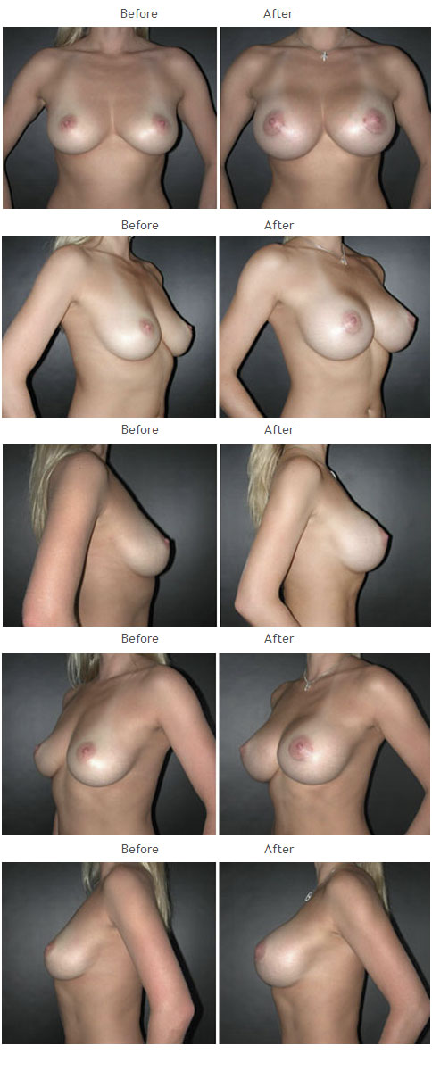Breast Augmentation NYC Case 1057
