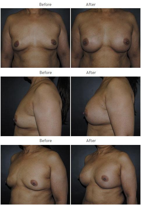 Breast Augmentation NYC Case 1059