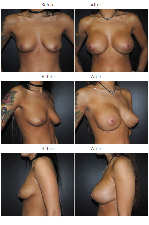Breast Augmentation NYC Case 1060