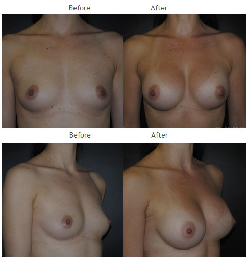 Breast Augmentation NYC Case 1063