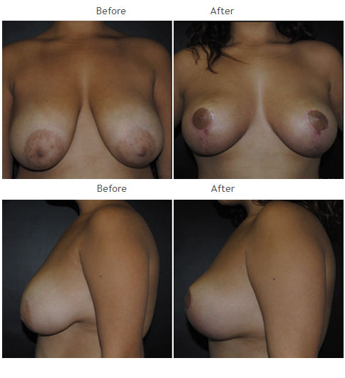 Breast Lift Case 1065