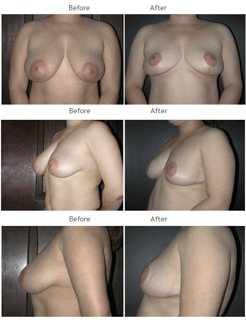 Breast Reduction NYC Case 1065