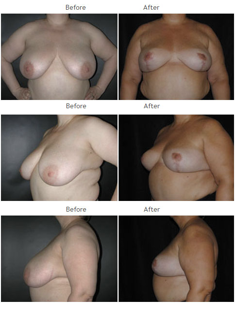 Breast Reduction NYC Case 1066