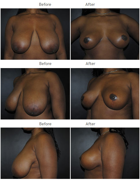 Breast Reduction NYC Case 1067