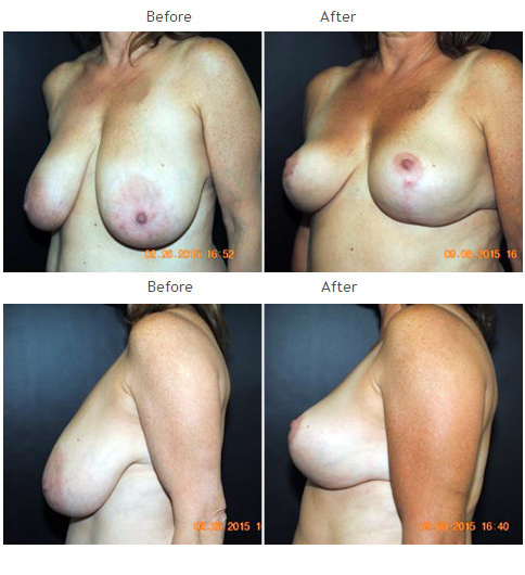 Breast Reduction NYC Case 1068