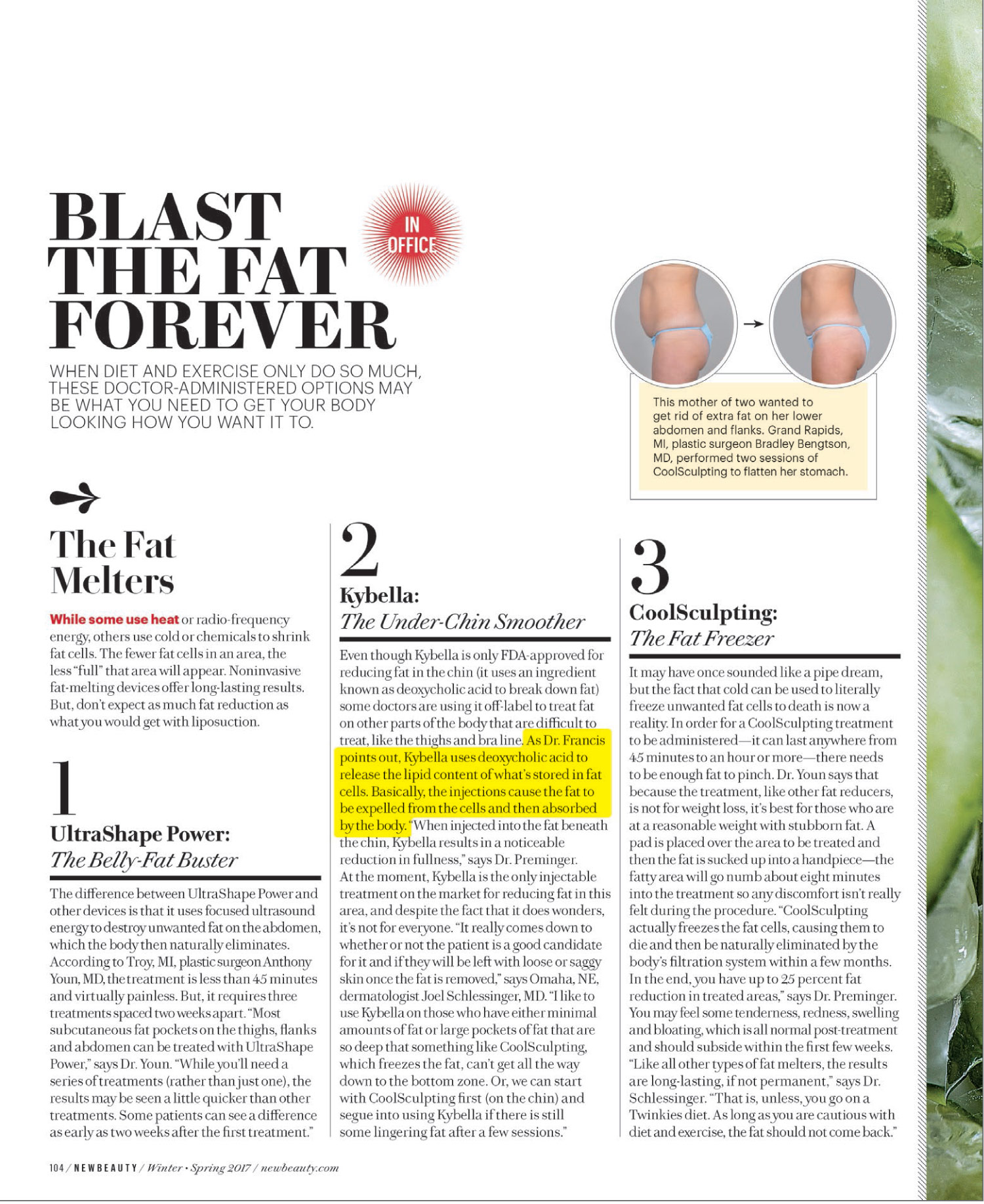 Dr. Francis is featured in this article of New Beauty January issue 3