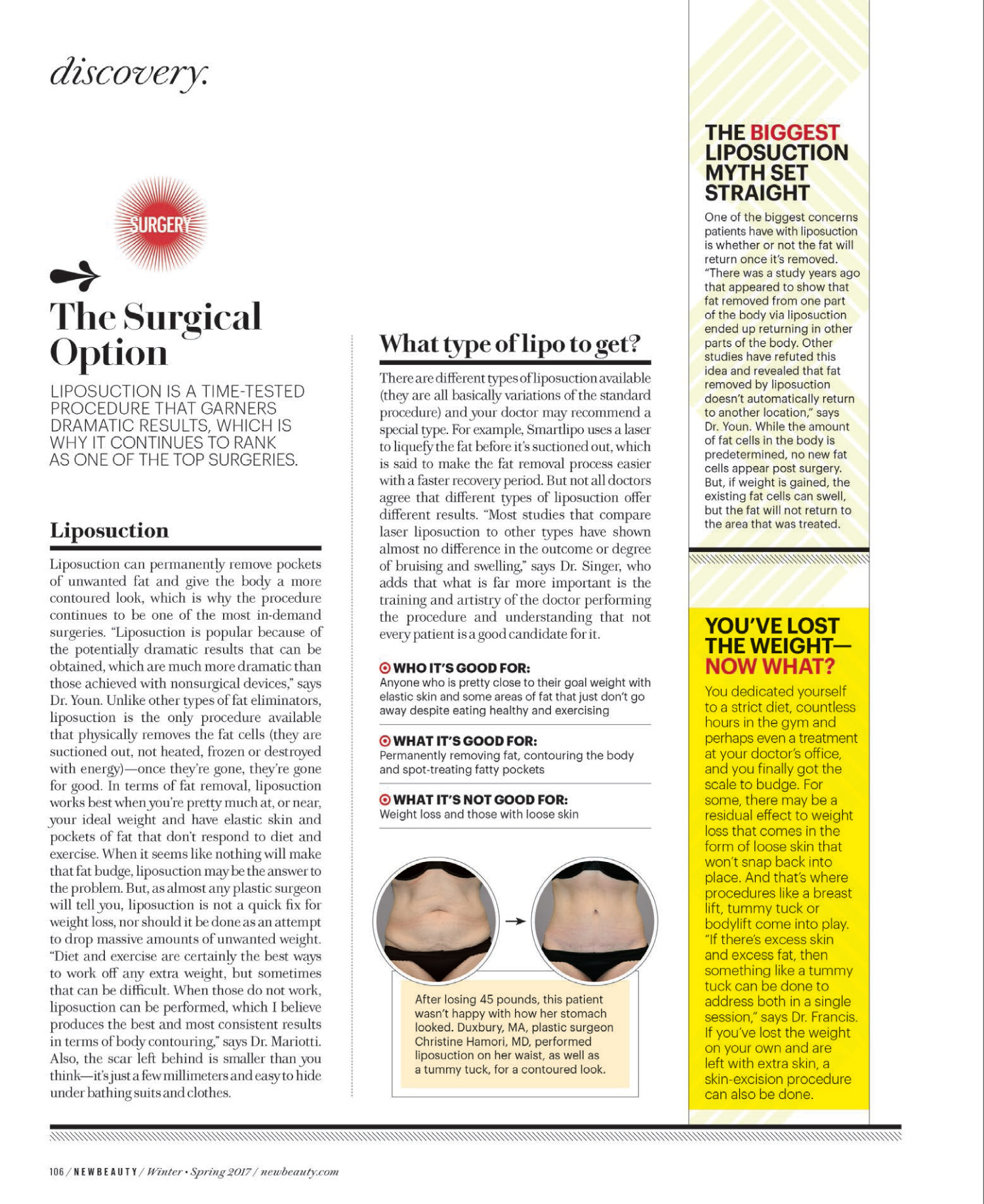 Dr. Francis is featured in this article of New Beauty January issue 5