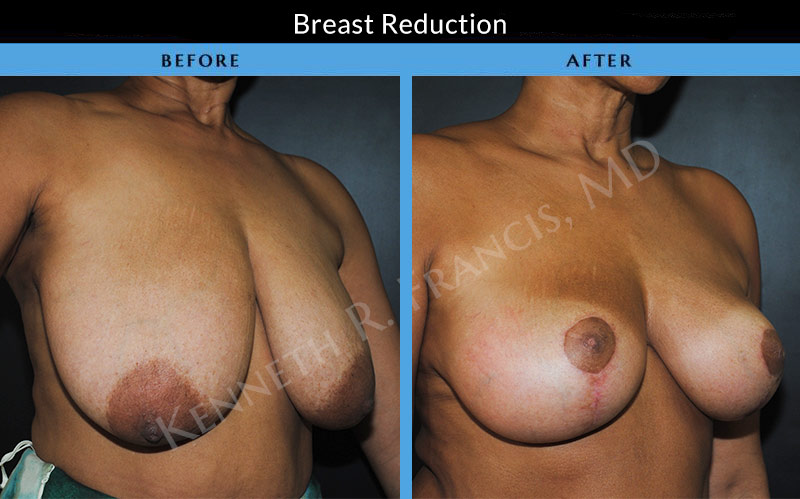 Breast Reduction NYC Case 1069 lift side