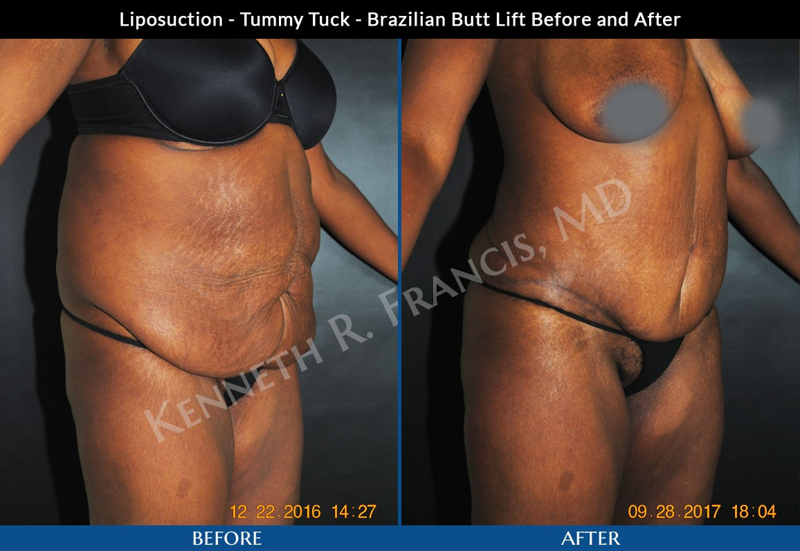 Brazilian Butt Lift NYC Case 1044