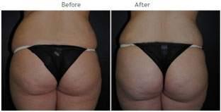 Brazilian Butt Lift New York City Patient 1036 - Butt augmentation NYC